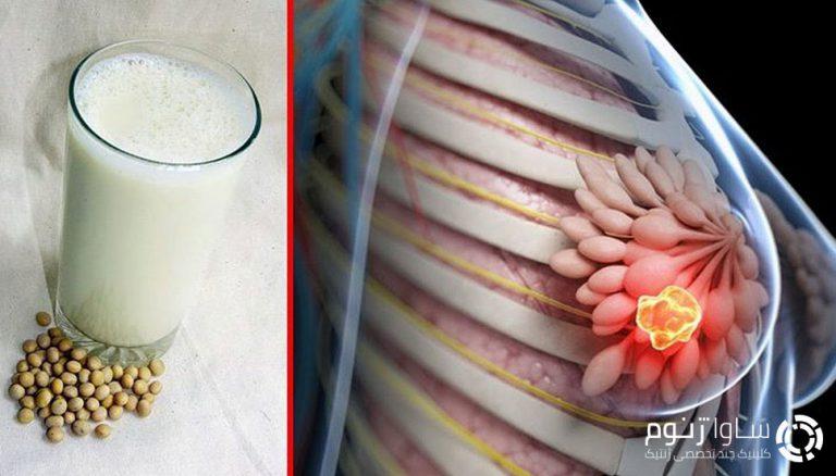 غذاهای لبنی و سویا و سرطان پستان