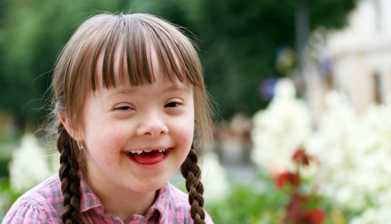 کودک مبتلا به سندروم داون یکی از مشکلات ژنتیکی