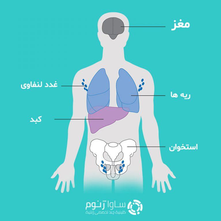 بافت هایی که سلول های سرطانی پستان به آنجا گسترش می یابند