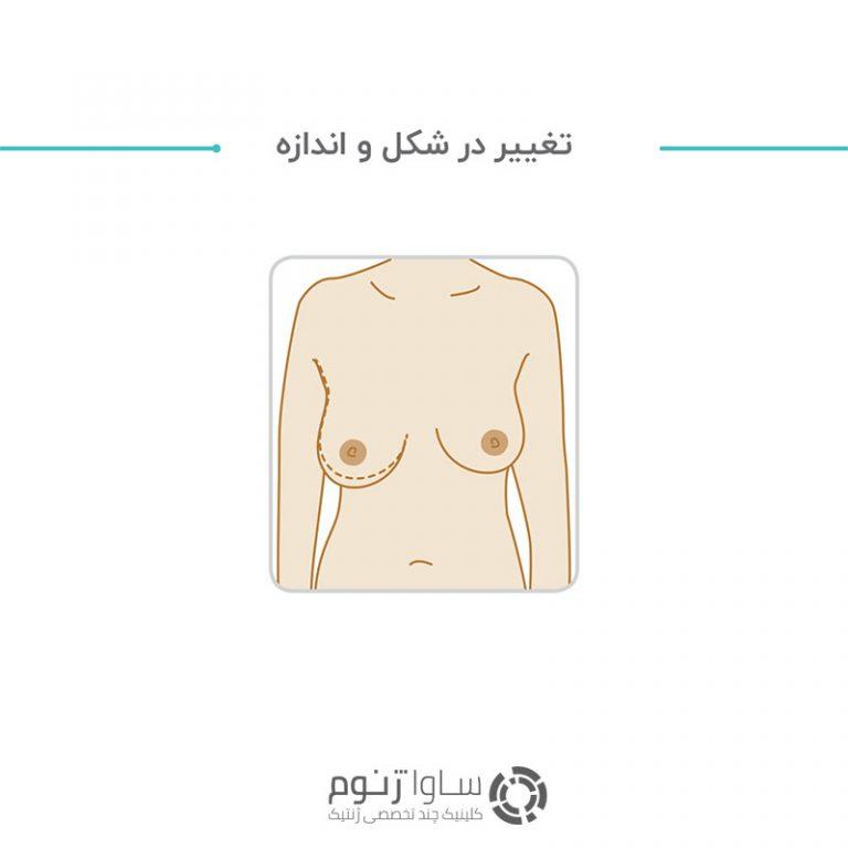 تغییر در شکل و اندازه پستان