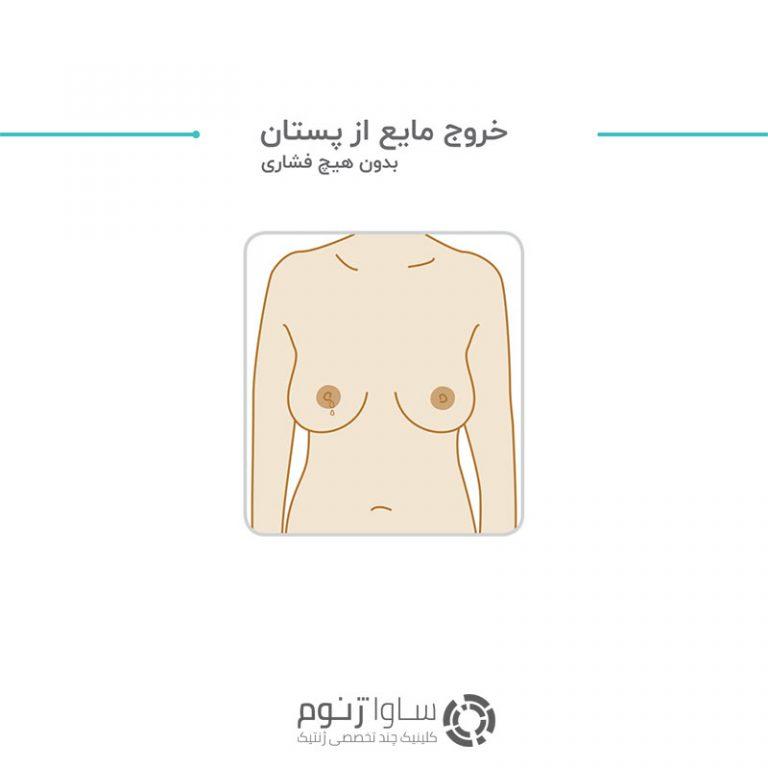 خروج مایع از پستان بدون هیچ فشاری