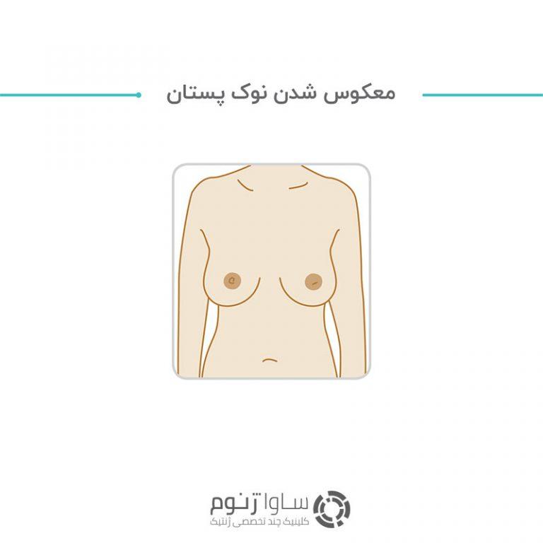 تغییر ظاهر یا موقعیت نوک پستان