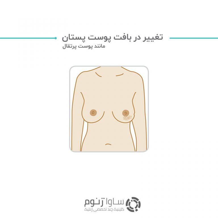 تغییر در بافت پوست پستان، مانند پوست پرتقال